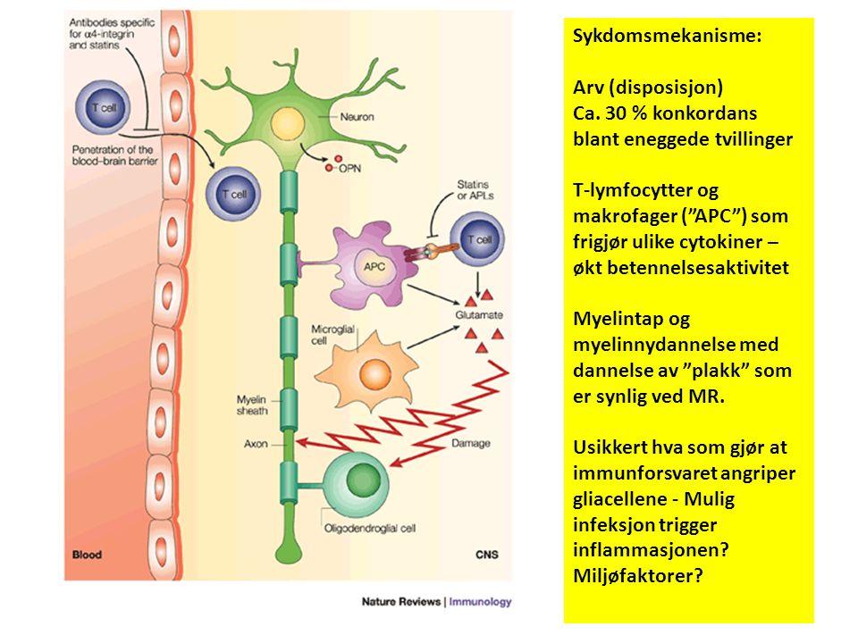 """Sykdomsmekanisme: Arv (disposisjon) Ca. 30 % konkordans blant eneggede tvillinger T-lymfocytter og makrofager (""""APC"""") som frigjør ulike cytokiner – øk"""
