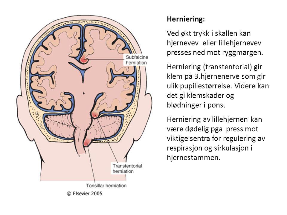 Herniering: Ved økt trykk i skallen kan hjernevev eller lillehjernevev presses ned mot ryggmargen. Herniering (transtentorial) gir klem på 3.hjernener
