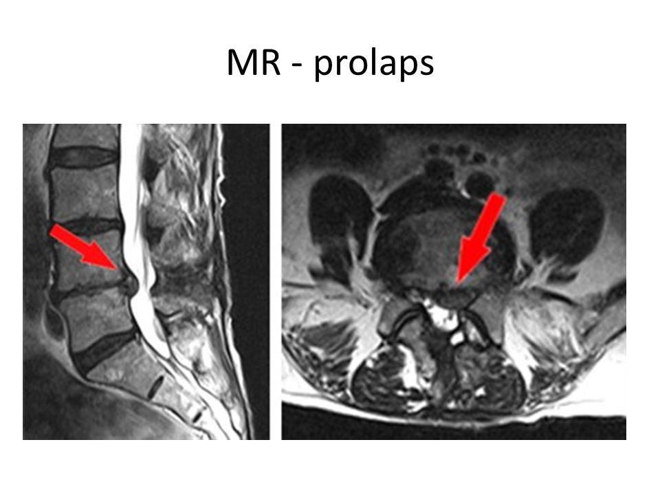 MR - prolaps