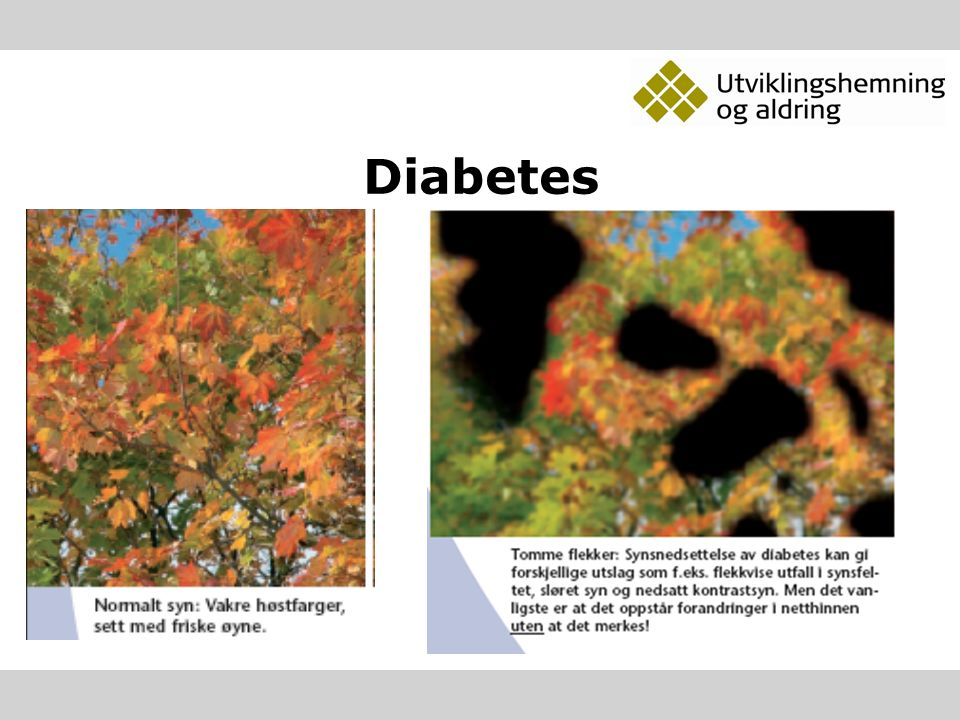 Glaukom – Grønn stær