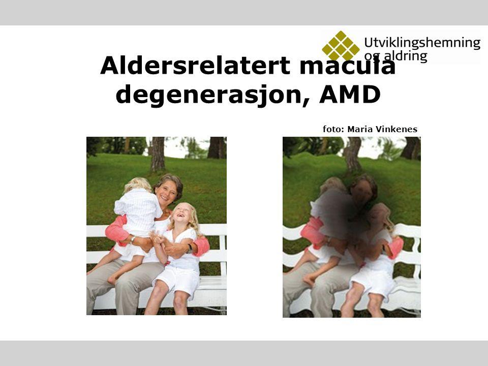 Aldersrelatert macula degenerasjon, AMD foto: Maria Vinkenes