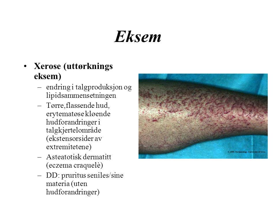 Eksem Xerose (uttørknings eksem) –endring i talgproduksjon og lipidsammensetningen –Tørre,flassende hud, erytematøse kløende hudforandringer i talgkjertelområde (ekstensorsider av extremitetene) –Asteatotisk dermatitt (eczema craquelè) –DD: pruritus seniles/sine materia (uten hudforandringer)