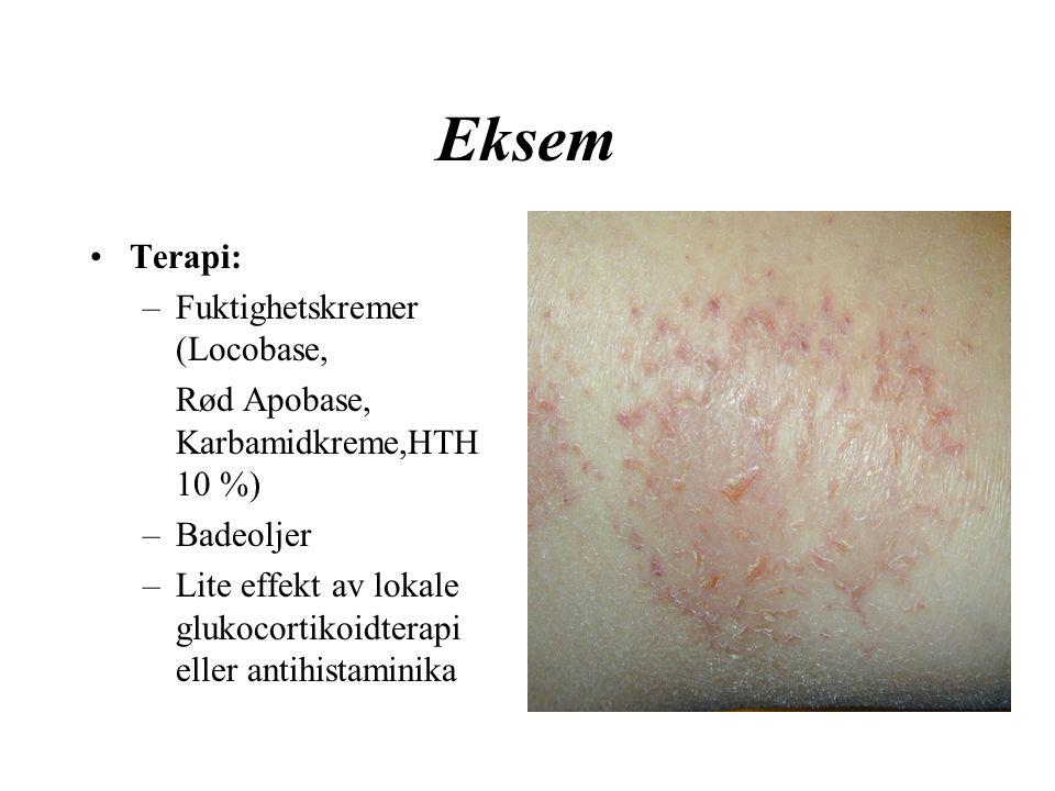 Eksem Terapi: –Fuktighetskremer (Locobase, Rød Apobase, Karbamidkreme,HTH 10 %) –Badeoljer –Lite effekt av lokale glukocortikoidterapi eller antihistaminika