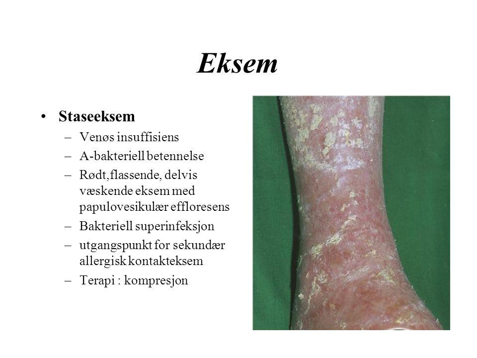 Eksem Staseeksem –Venøs insuffisiens –A-bakteriell betennelse –Rødt,flassende, delvis væskende eksem med papulovesikulær effloresens –Bakteriell superinfeksjon –utgangspunkt for sekundær allergisk kontakteksem –Terapi : kompresjon