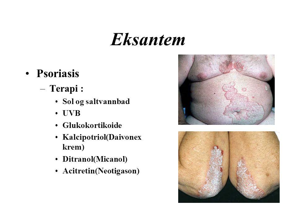 Eksantem Psoriasis –Terapi : Sol og saltvannbad UVB Glukokortikoide Kalcipotriol(Daivonex krem) Ditranol(Micanol) Acitretin(Neotigason)