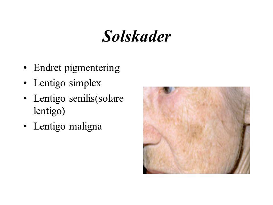 Solskader Endret pigmentering Lentigo simplex Lentigo senilis(solare lentigo) Lentigo maligna