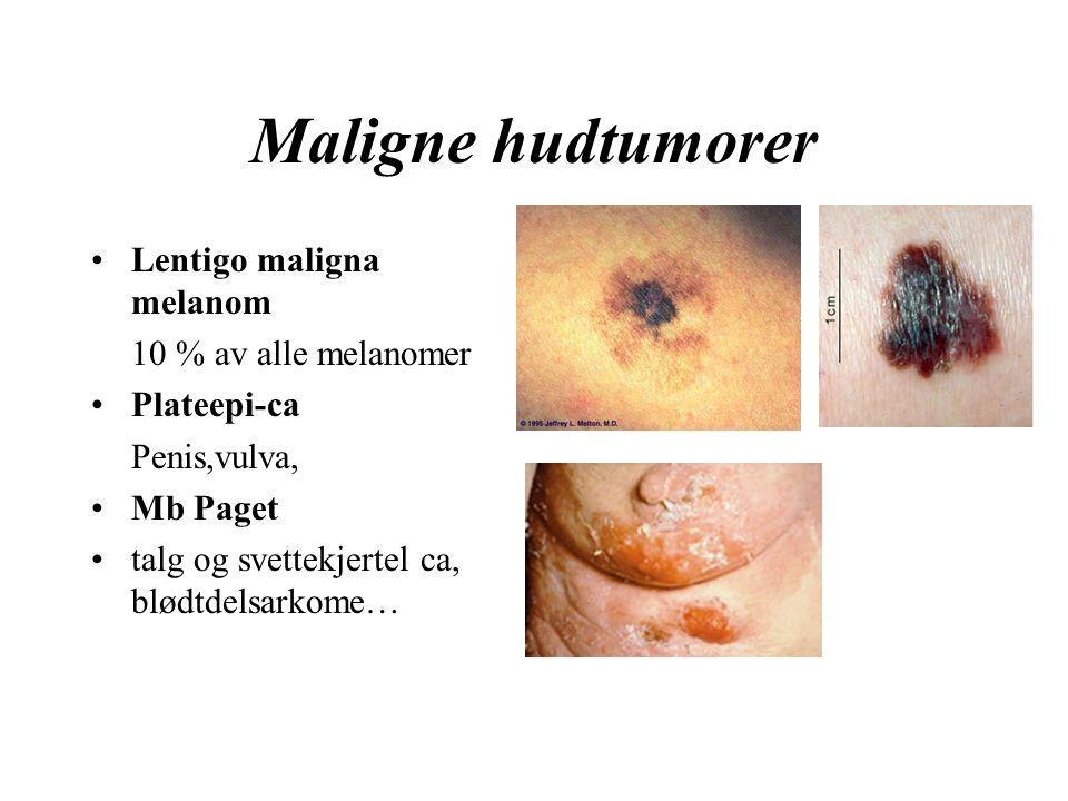 Maligne hudtumorer Lentigo maligna melanom 10 % av alle melanomer Plateepi-ca Penis,vulva, Mb Paget talg og svettekjertel ca, blødtdelsarkome…