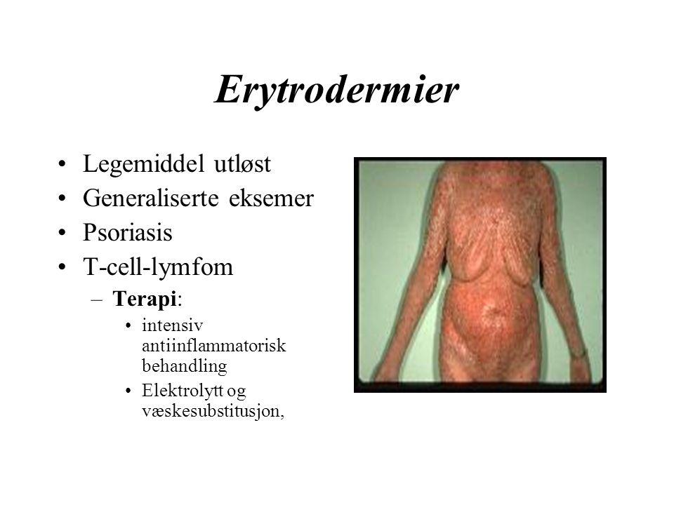 Erytrodermier Legemiddel utløst Generaliserte eksemer Psoriasis T-cell-lymfom –Terapi: intensiv antiinflammatorisk behandling Elektrolytt og væskesubstitusjon,