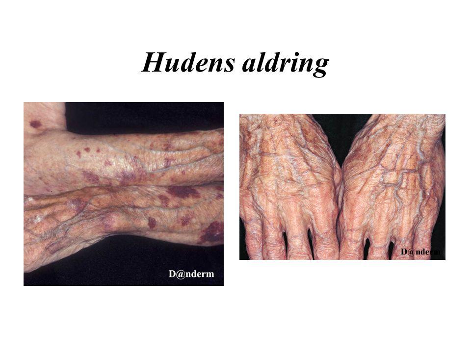 Hudens aldring
