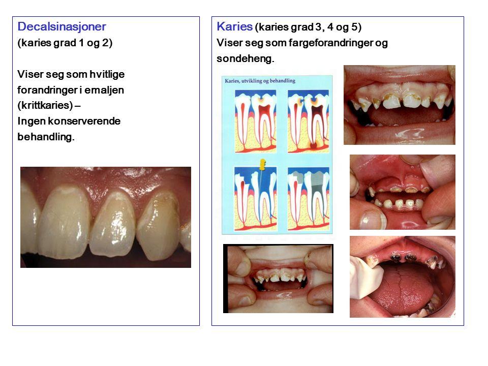 Decalsinasjoner (karies grad 1 og 2) Viser seg som hvitlige forandringer i emaljen (krittkaries) – Ingen konserverende behandling.