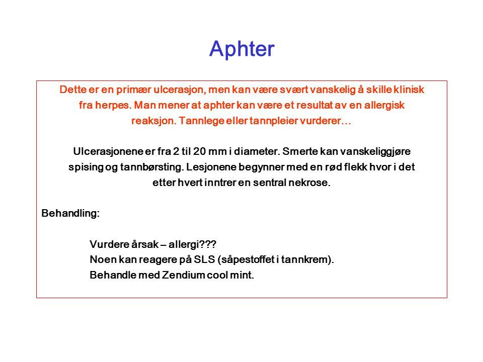Aphter Dette er en primær ulcerasjon, men kan være svært vanskelig å skille klinisk fra herpes.
