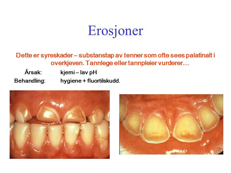Erosjoner Dette er syreskader – substanstap av tenner som ofte sees palatinalt i overkjeven.