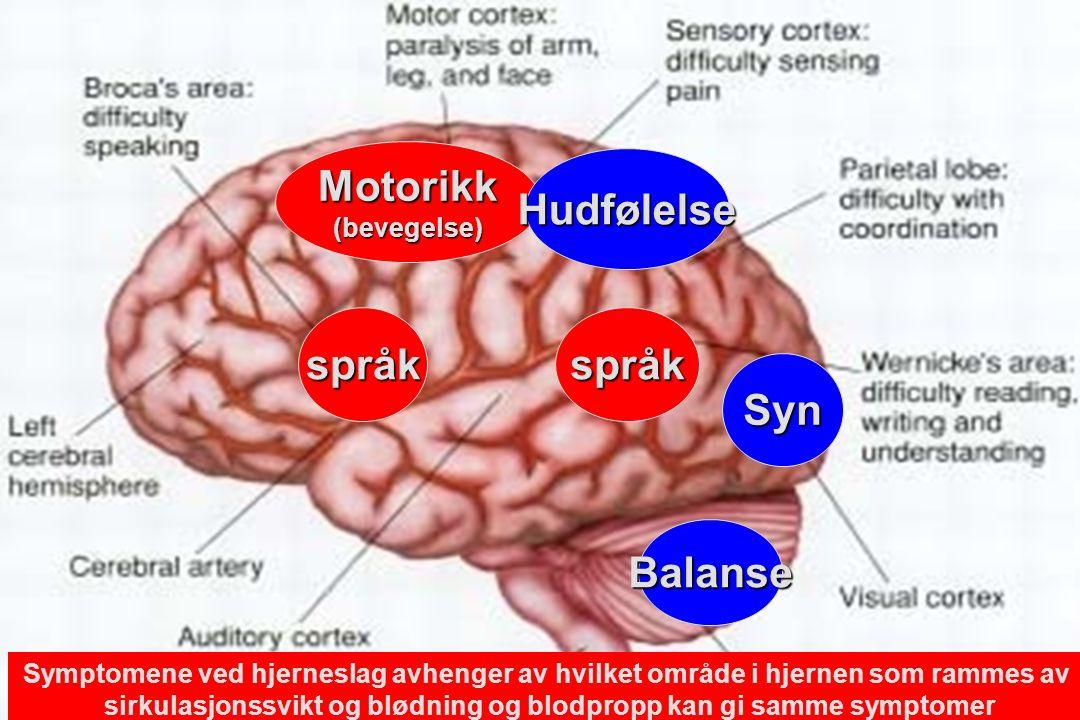 Motorikk(bevegelse) språkspråk Hudfølelse Syn Balanse Symptomene ved hjerneslag avhenger av hvilket område i hjernen som rammes av sirkulasjonssvikt og blødning og blodpropp kan gi samme symptomer