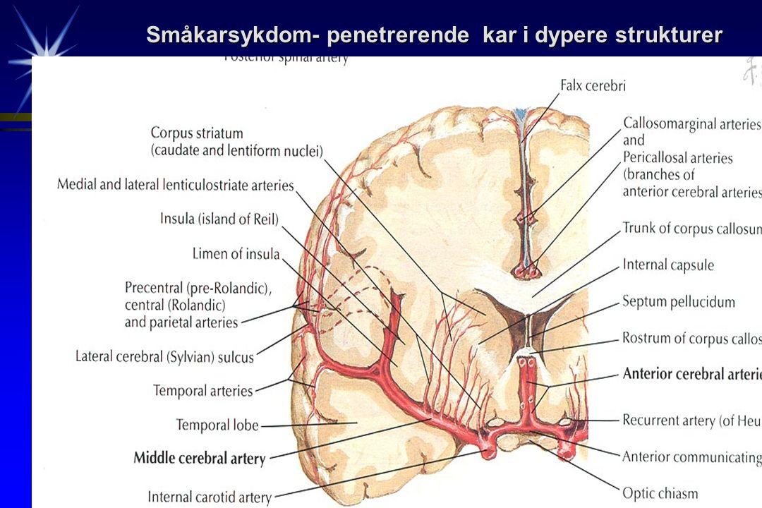 Småkarsykdom- penetrerende kar i dypere strukturer