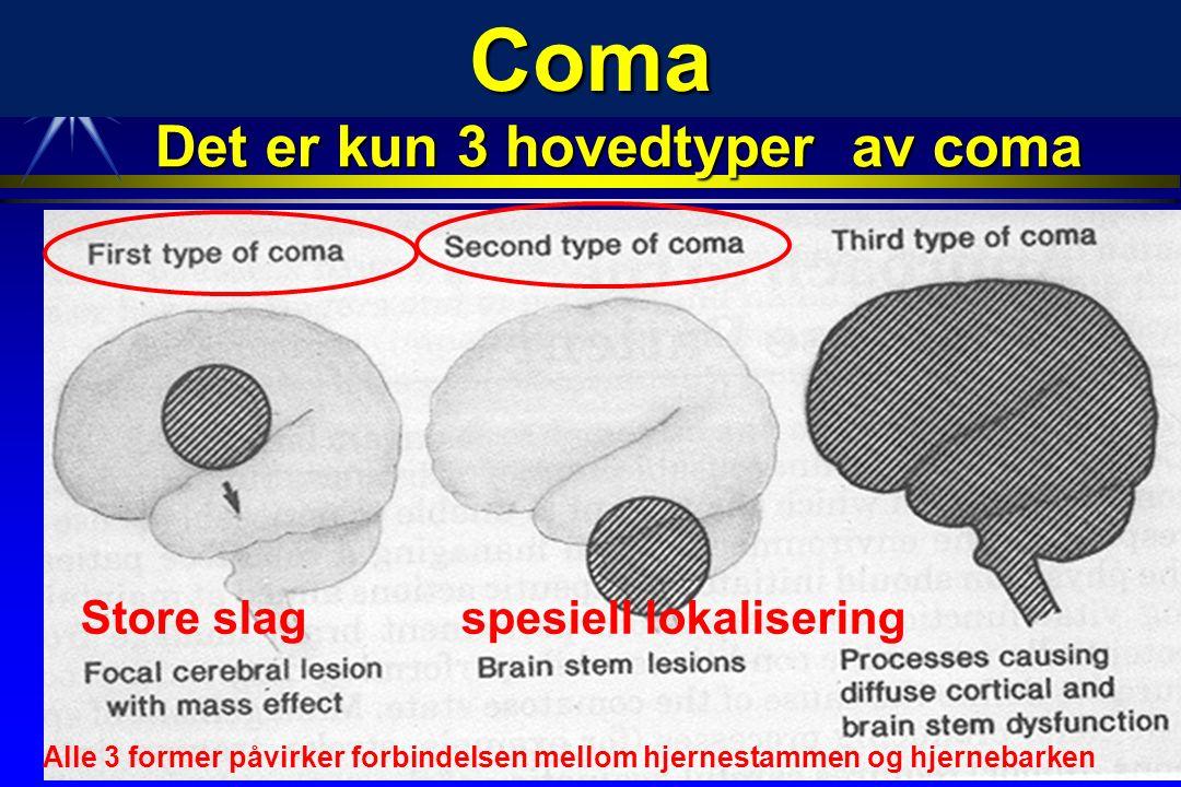 Coma Det er kun 3 hovedtyper av coma Alle 3 former påvirker forbindelsen mellom hjernestammen og hjernebarken Store slag spesiell lokalisering