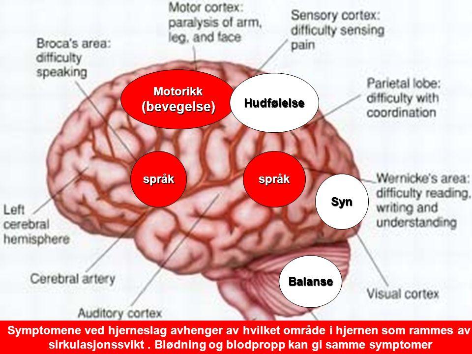 13 Motorikk(bevegelse) språkspråk Hudfølelse Syn Balanse Symptomene ved hjerneslag avhenger av hvilket område i hjernen som rammes av sirkulasjonssvikt.