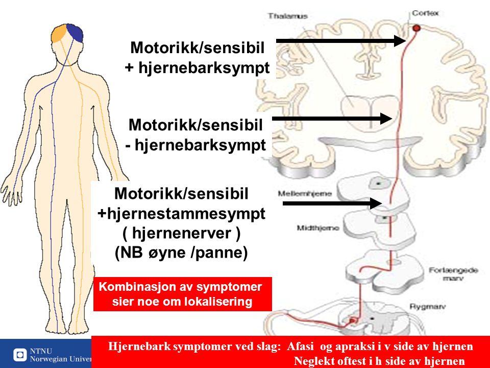 17 Motorikk/sensibil + hjernebarksympt Motorikk/sensibil - hjernebarksympt Motorikk/sensibil +hjernestammesympt ( hjernenerver ) (NB øyne /panne) Kombinasjon av symptomer sier noe om lokalisering Hjernebark symptomer ved slag: Afasi og apraksi i v side av hjernen Neglekt oftest i h side av hjernen