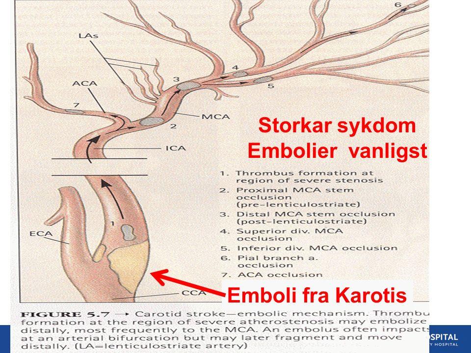 23 Storkar sykdom Embolier vanligst Emboli fra Karotis