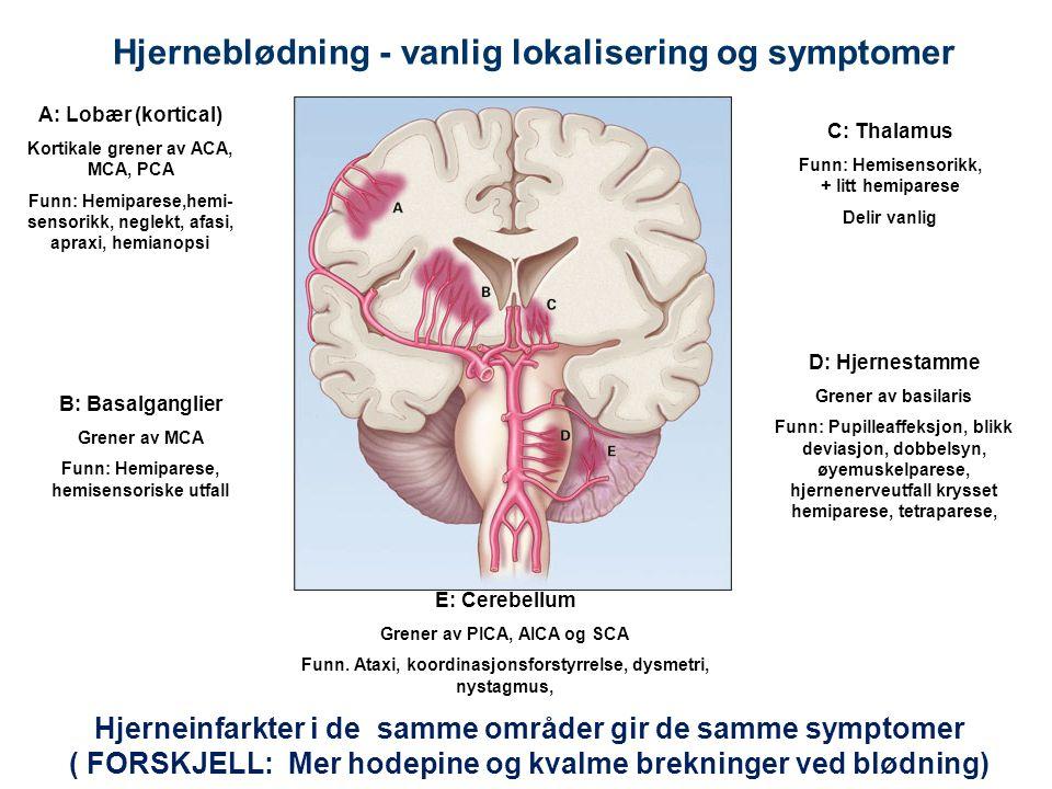 33 Hjerneblødning - vanlig lokalisering og symptomer A: Lobær (kortical) Kortikale grener av ACA, MCA, PCA Funn: Hemiparese,hemi- sensorikk, neglekt, afasi, apraxi, hemianopsi B: Basalganglier Grener av MCA Funn: Hemiparese, hemisensoriske utfall C: Thalamus Funn: Hemisensorikk, + litt hemiparese Delir vanlig D: Hjernestamme Grener av basilaris Funn: Pupilleaffeksjon, blikk deviasjon, dobbelsyn, øyemuskelparese, hjernenerveutfall krysset hemiparese, tetraparese, E: Cerebellum Grener av PICA, AICA og SCA Funn.