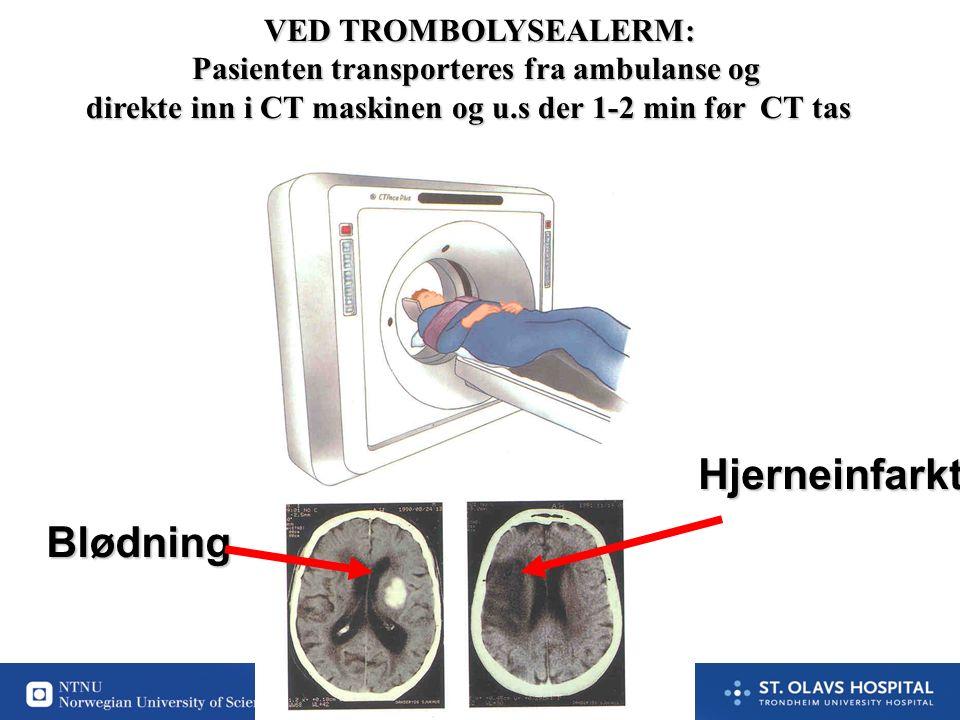 45 VED TROMBOLYSEALERM: Pasienten transporteres fra ambulanse og direkte inn i CT maskinen og u.s der 1-2 min før CT tas Blødning Hjerneinfarkt
