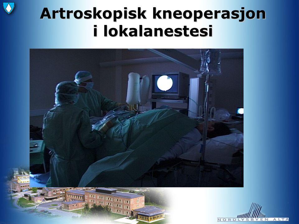 Artroskopisk kneoperasjon i lokalanestesi