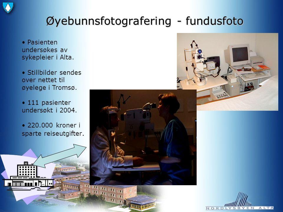 Øyebunnsfotografering - fundusfoto Pasienten undersøkes av sykepleier i Alta.