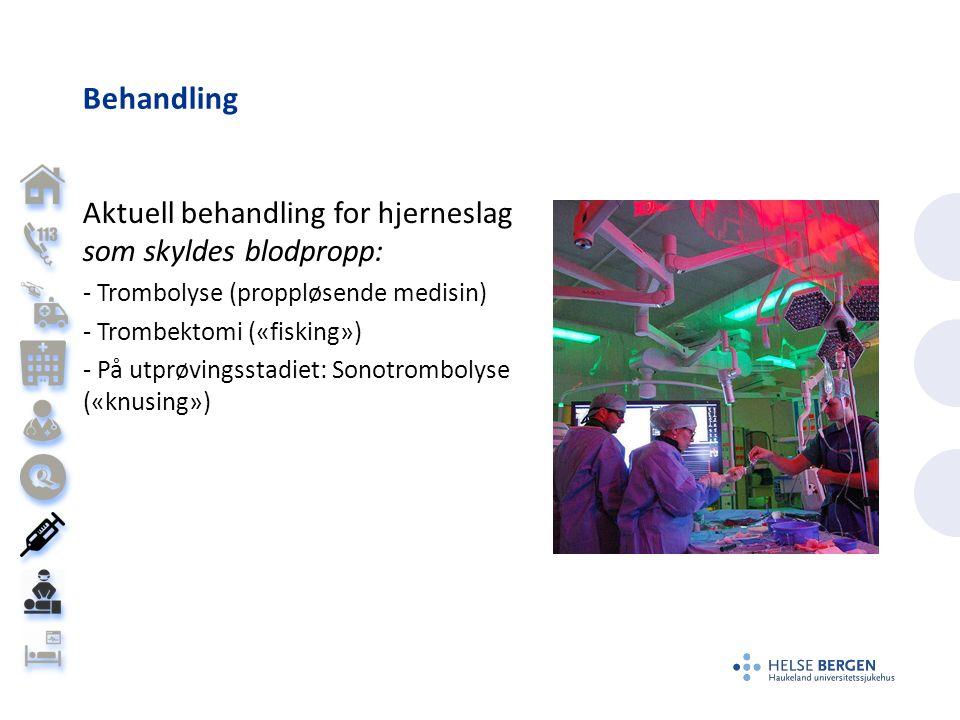 Behandling Aktuell behandling for hjerneslag som skyldes blodpropp: - Trombolyse (proppløsende medisin) - Trombektomi («fisking») - På utprøvingsstadiet: Sonotrombolyse («knusing»)