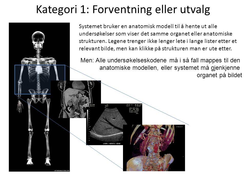 Kategori 1: Forventning eller utvalg Systemet bruker en anatomisk modell til å hente ut alle undersøkelser som viser det samme organet eller anatomiske strukturen.