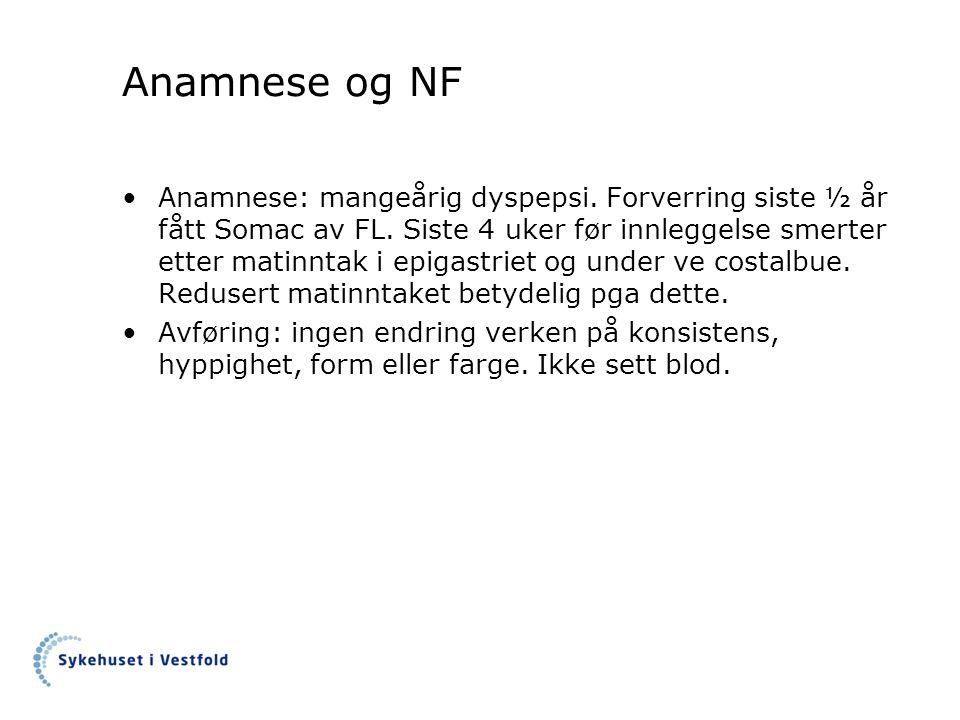 Anamnese og NF Anamnese: mangeårig dyspepsi. Forverring siste ½ år fått Somac av FL. Siste 4 uker før innleggelse smerter etter matinntak i epigastrie