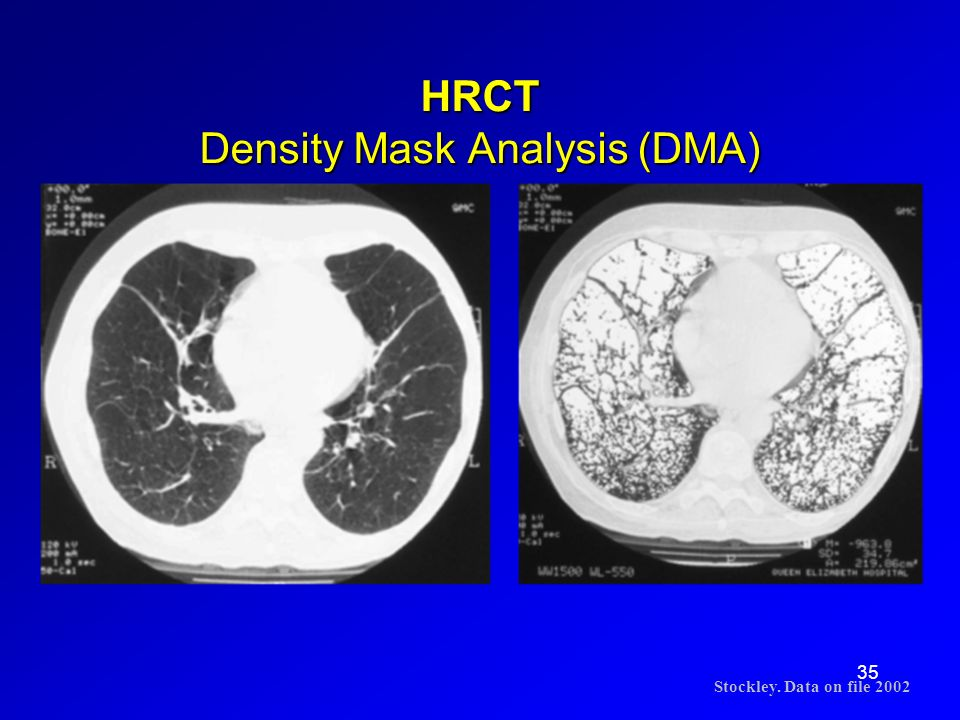 35 HRCT Density Mask Analysis (DMA) Stockley. Data on file 2002