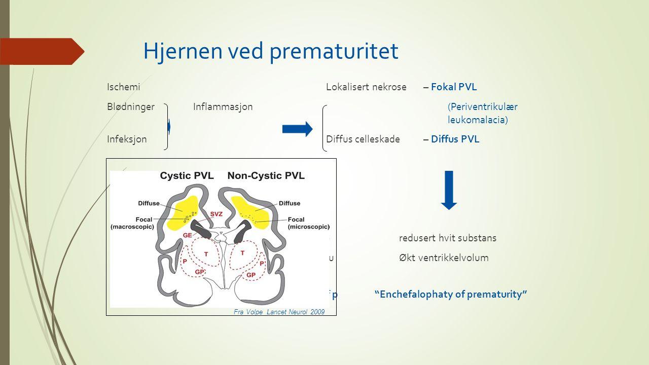 Hjernen ved prematuritet Ischemi Lokalisert nekrose – Fokal PVL Blødninger Inflammasjon (Periventrikulær leukomalacia) Infeksjon Diffus celleskade – D