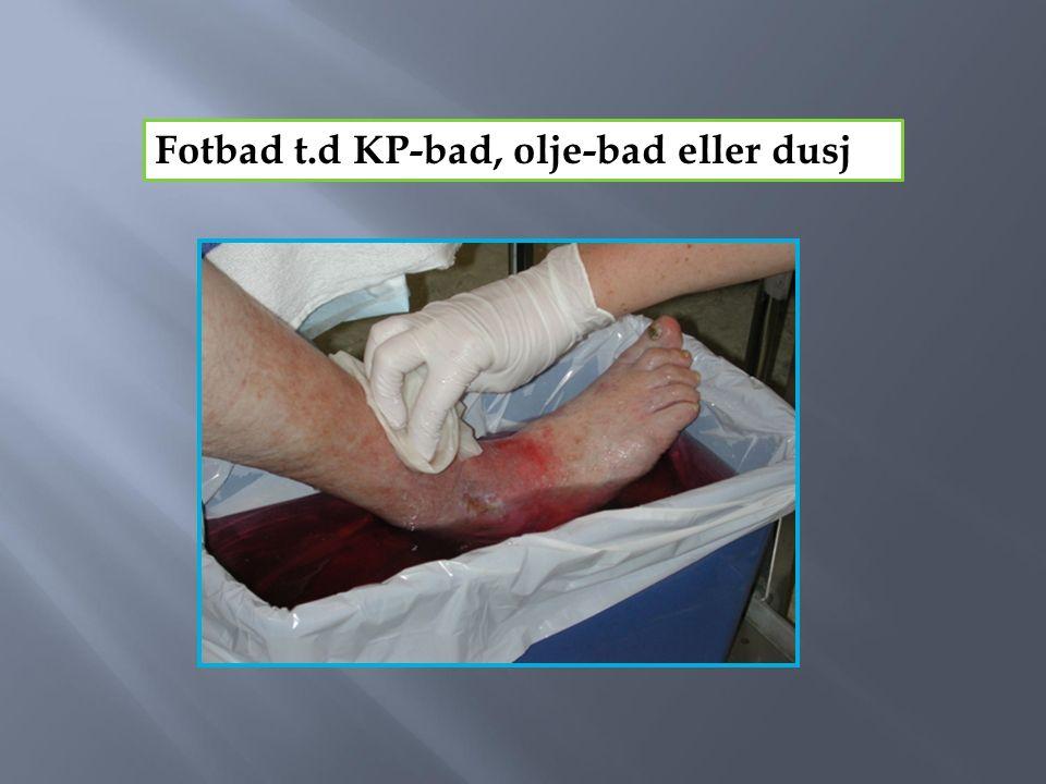 Fotbad t.d KP-bad, olje-bad eller dusj