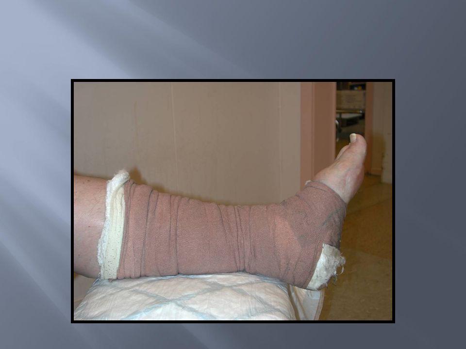 Velg bind i passande storleik Valg av bind er avhengig av pasienten sitt aktivitetsnivå Valg av bind er avhengig av sår skift hyppighet