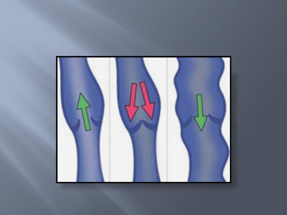 for høgt venøst trykk utviding og forlenging av overflatiske vener lekkasje fra kapillæra tilvevet omkring ødem og tyngdekjensle i beina fare for eksem og SÅR