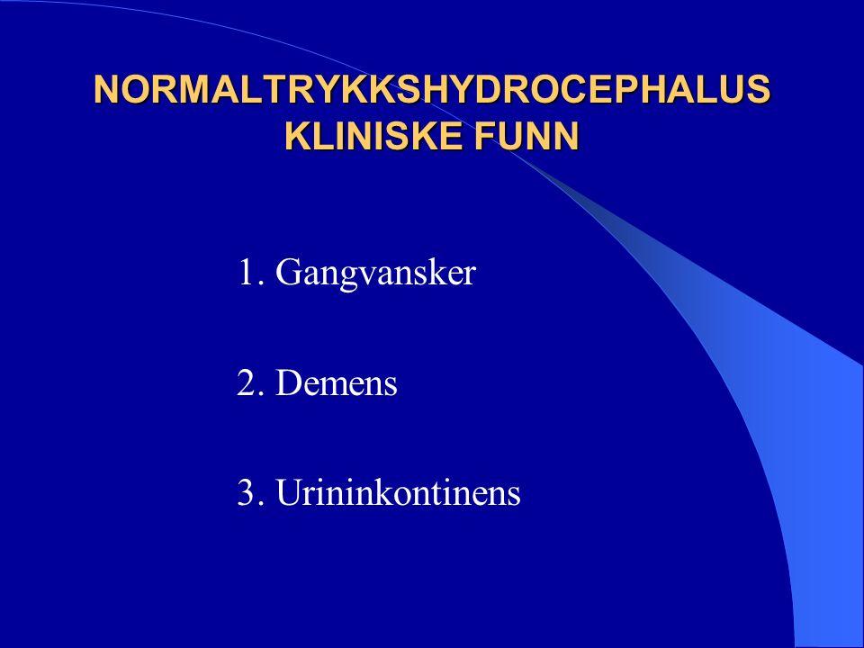 DEMENSTYPER I. Primært degenerative demenssykdommer II. Vaskulær demens III. Sekundære demensformer