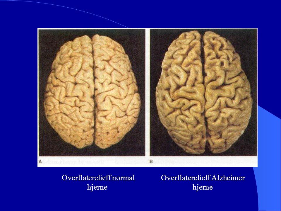 Overflaterelieff normal hjerne Overflaterelieff Alzheimer hjerne