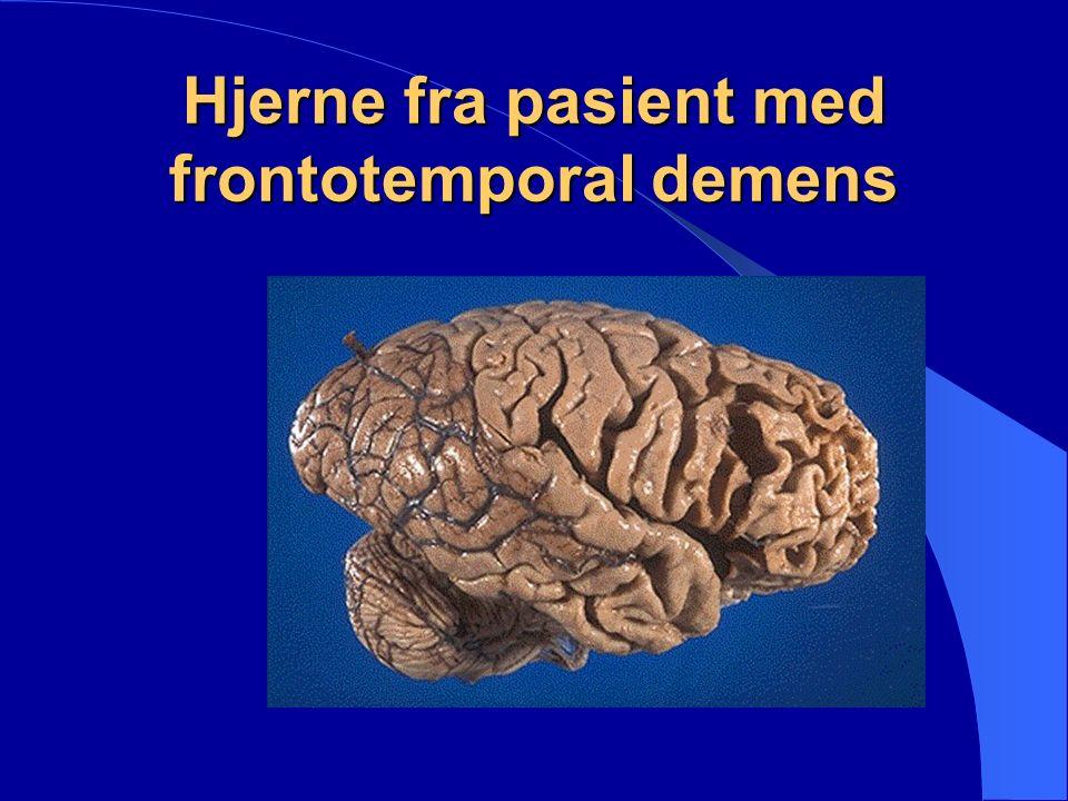 DEMENS AV BLANDET TYPE En blanding av Alzheimers- og vaskulær demens.