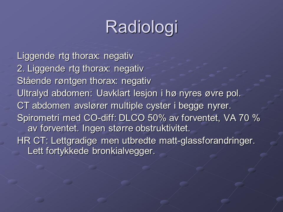 Radiologi Liggende rtg thorax: negativ 2.