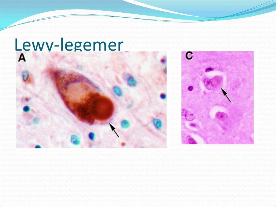 Lewy-legemer