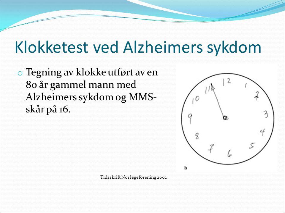 Klokketest ved Alzheimers sykdom o Tegning av klokke utført av en 80 år gammel mann med Alzheimers sykdom og MMS- skår på 16.