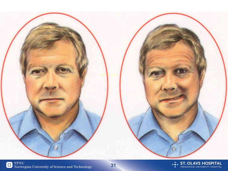 30 Typiske akutte slagsymptomer: Akutt debut av FAST symptomer:  Facialis parese > 65 %skjev i ansikt  Armparese (halvsidig > 80 % nedsatt kraft arm  Språkproblemer >25 % vanskelig finne ord  Taleproblemer > 40 %utydelig tale 83 % *av alle slagpas har ett eller flere av de anførte symptomer * Registrert hos 5000 pasienter ved St Olavs Hosital og 8000 pasienter i Midt Norge.