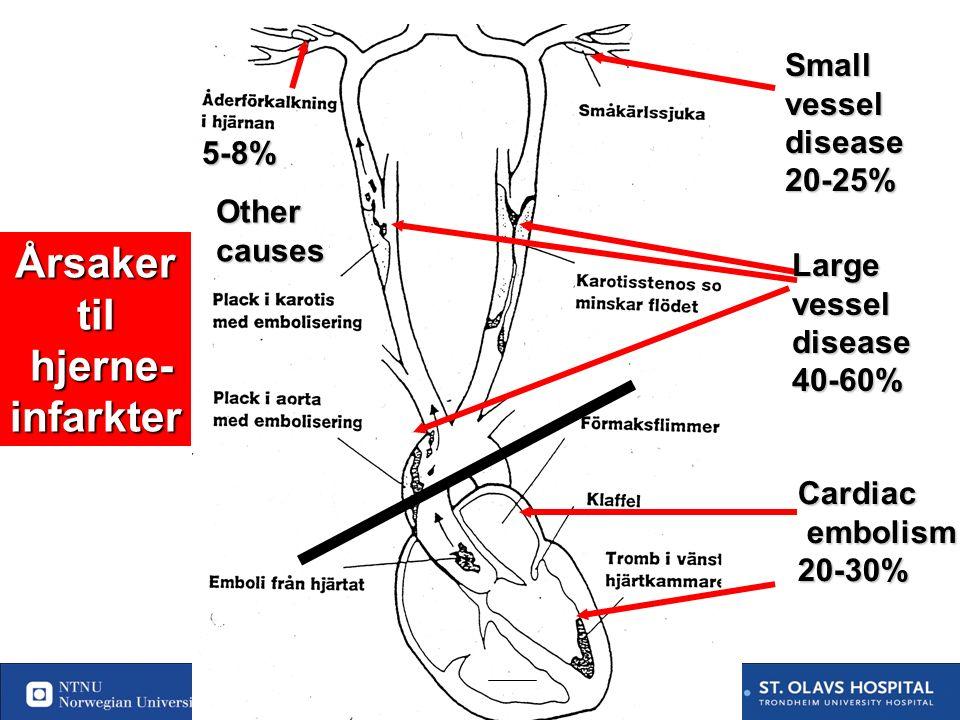 73 Utredning av årsaker til hjerneinfarktet Karsystemet: Cerebral eller MR angio eller ultralyd Hvis stenose på ultralyd som tilsier mulig opr ( >70 %