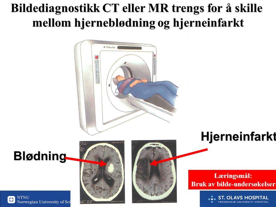 42 Påvirker prognose mye Stor nytte av (rask) behandling Liten nytte av (rask) behandling Påvirker prognosen lite Hypo/hyperglyc Alv infeksj Intox Alv hjerte/karsykd (Alv lungesykd) Subduralt hematom hematom Div Metabolske encephalopatier Epilepsi Migrene Perifer nervelesjon MS, vestibularis aff, vertigo, TGA Funksjonelle sympt Ikke card syncope Tumor Prioriteringer i den diagnostisk vurdering Prioriteringer i den diagnostisk vurdering Prioritet 1 Prioritet 2 Prioritet 3 Læringsmål: diff diagnoser som må prioriteres I akuttfasen