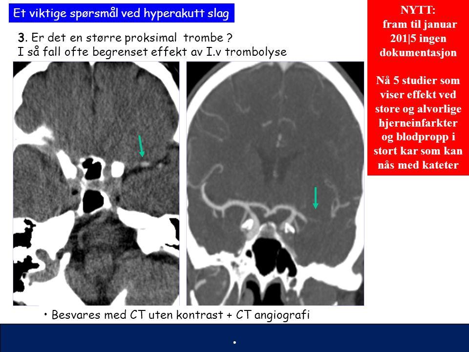 55 Trombolyse INDIKASJONER/KONTRAINDIASJONER fram til nå Akutt hjerneinfarkt Behandlingsstart innen 4,5 TIMER Tydelige symptomer Alle aldre Indikasjoner Viktige kontraindikasjoner Ukjent debuttidspunkt Comatøs Antikoagulasjonsbehandling ( warfarin el heparin) Tidl hjerneblødning/hjernekirurgi Læringsmål : trombolyse