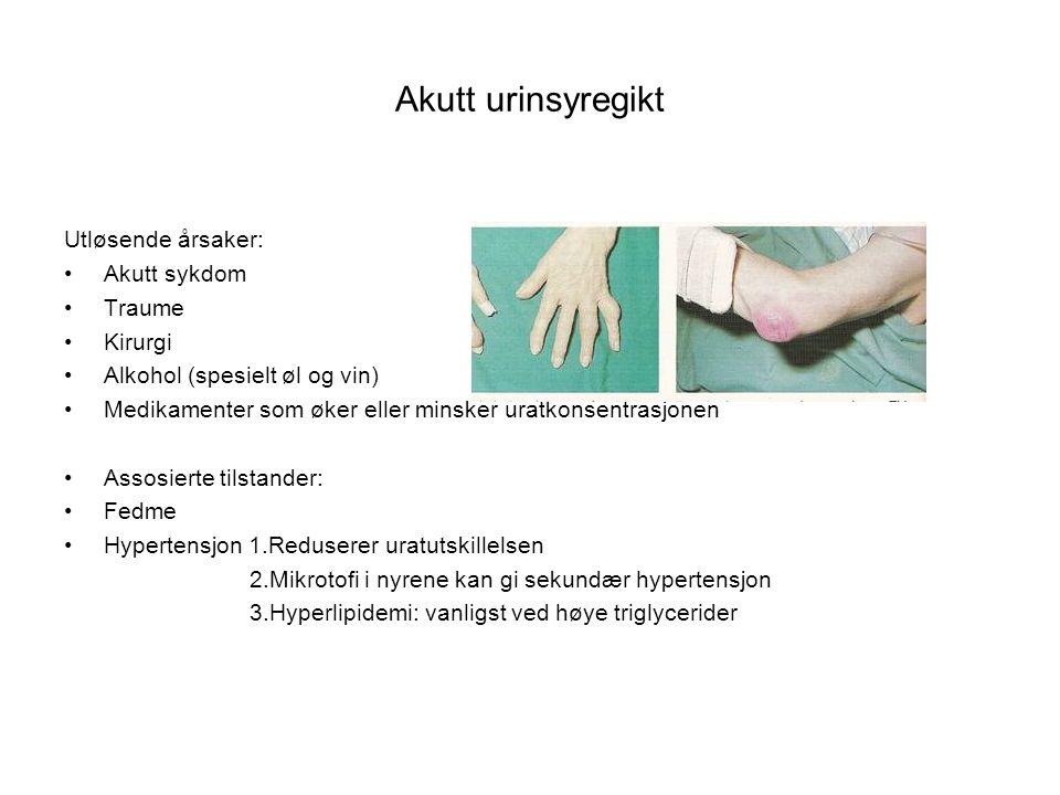 Akutt urinsyregikt Utløsende årsaker: Akutt sykdom Traume Kirurgi Alkohol (spesielt øl og vin) Medikamenter som øker eller minsker uratkonsentrasjonen