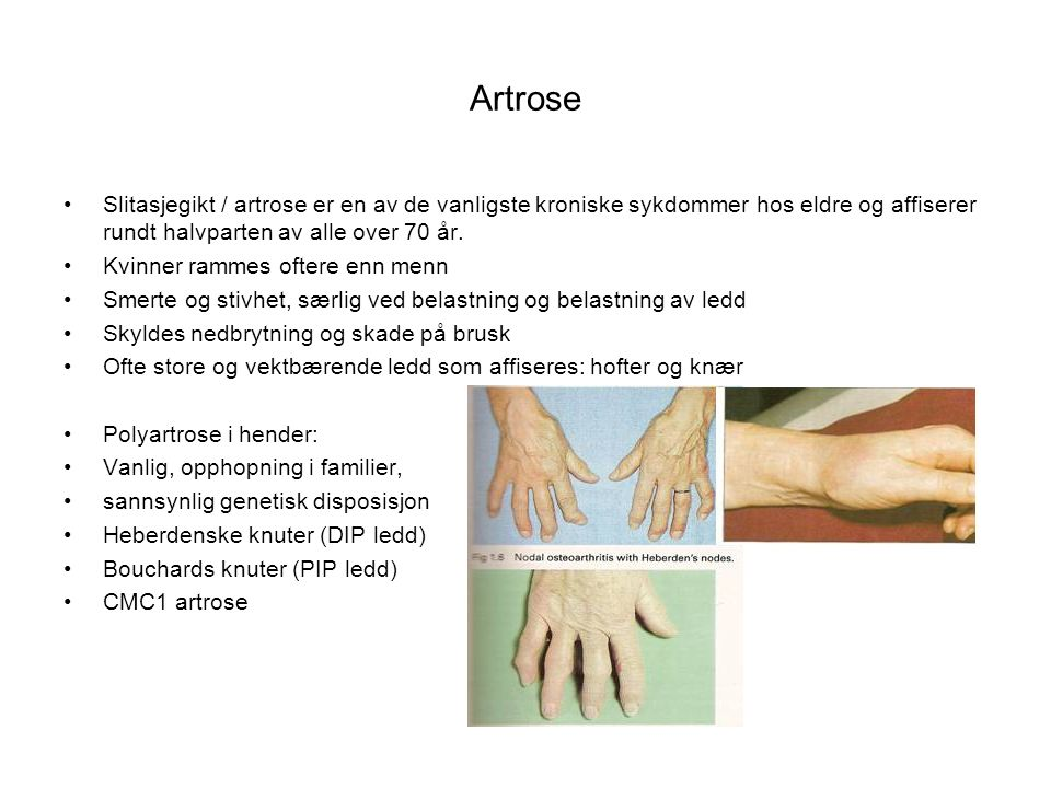 Artrose Slitasjegikt / artrose er en av de vanligste kroniske sykdommer hos eldre og affiserer rundt halvparten av alle over 70 år. Kvinner rammes oft