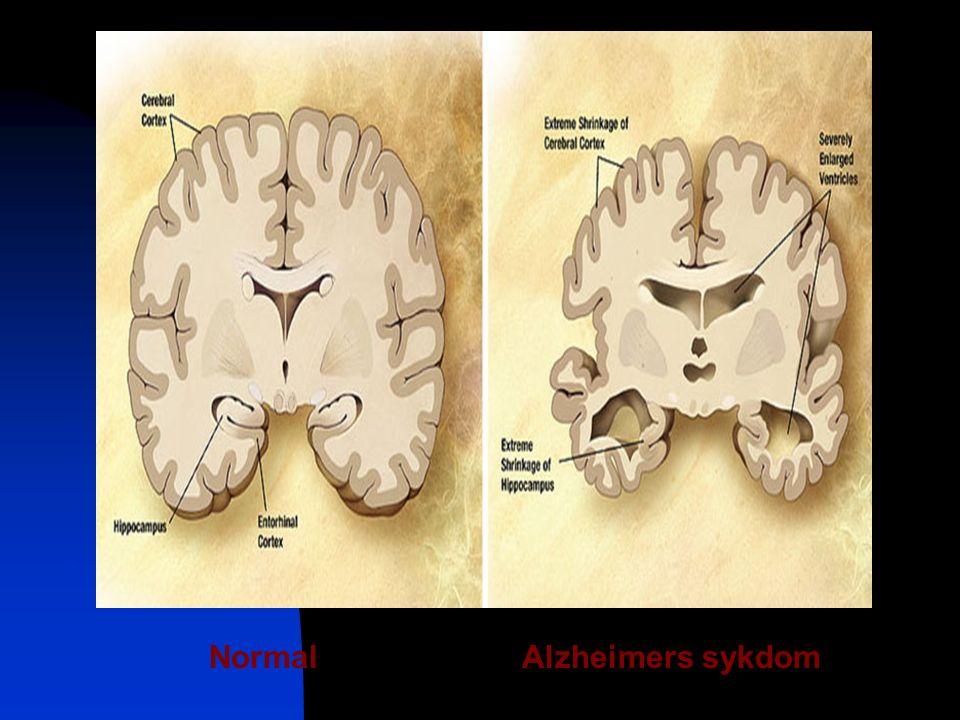 NormalAlzheimers sykdom