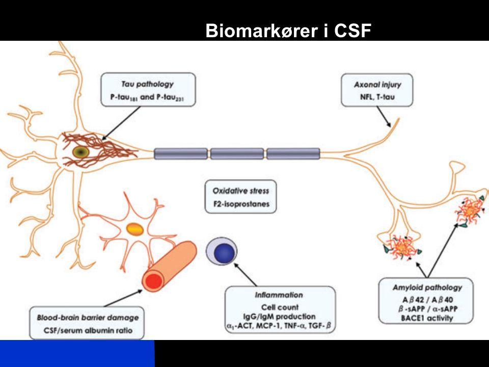 Biomarkører i CSF
