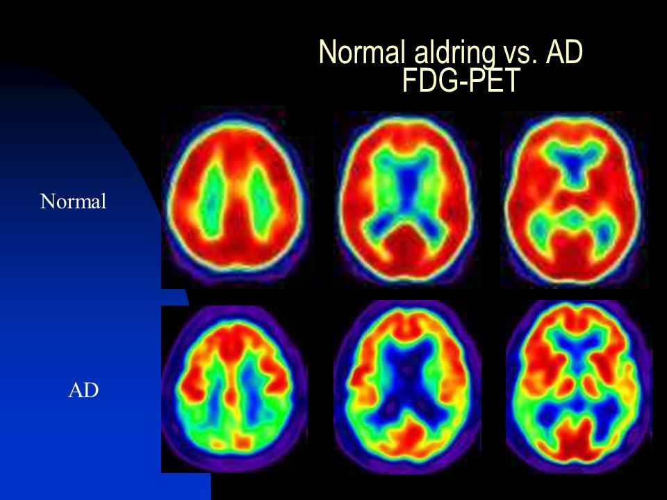 Normal aldring vs. AD FDG-PET Normal AD