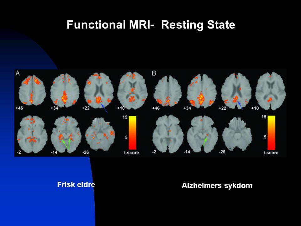 Functional MRI- Resting State Frisk eldre Alzheimers sykdom